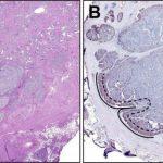 Potential Metastatic Prostate Cancer Biomarker Identified